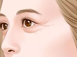 为什么说玻尿酸是美容神器?