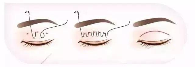 怎么获得漂亮双眼皮?