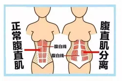 100%产后妈妈都有的腹直肌分离,怎么修复?