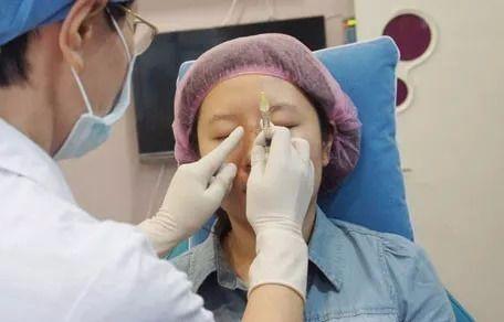 《如懿传》周迅脸崩了,是玻尿酸打多了吗?