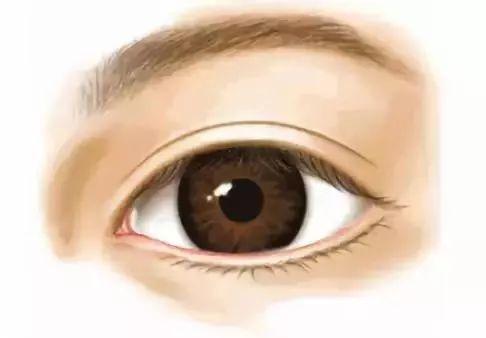 双眼皮修复的常见问题有什么?