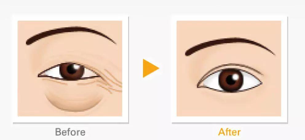 激光去眼袋术后有什么注意事项?