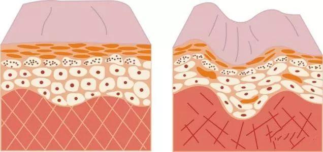 液态线雕 PK 肉毒素,除皱哪家强?
