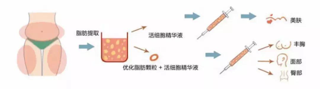 玻尿酸 VS 自体脂肪,效果哪个强?