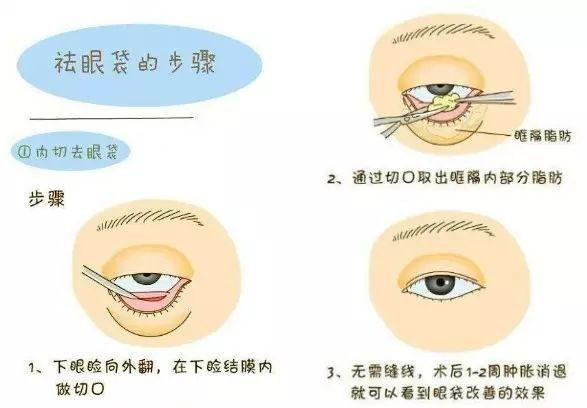 黑眼圈形成原因及消除方法是什么?