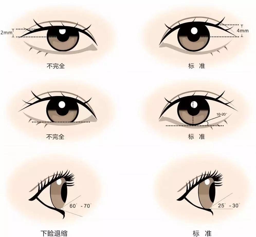 切开法双眼皮术是怎样操作的呢?