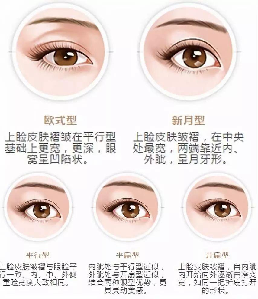 埋线双眼皮有什么需要注意的嘛?