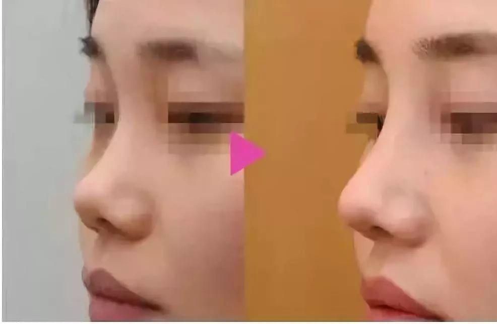 玻尿酸隆鼻的基础知识?