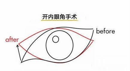 开内眼角好,还是外眼角更好呢?