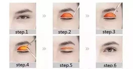 双眼皮手术失败怎么修复?