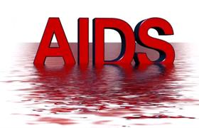 非正规机构美容文眉有风险 艾滋病传染性高