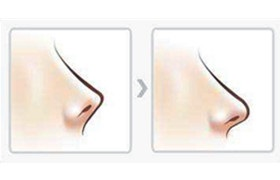 什么是朝天鼻整形?