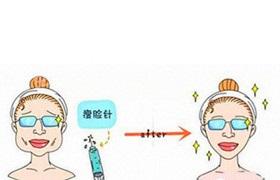美容院:瘦脸针致脸部凹陷,是正常的!