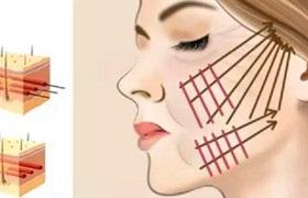 女子做线雕手术后痛了一天 鼻梁取出13根带刺的线