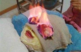 在美容院做火疗却被火烧伤了