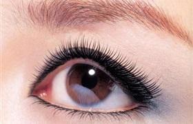开眼角后疤痕增生怎么办 如何避免开眼角术后留疤