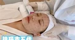 武汉约九成医美机构 从事热玛吉医美项目